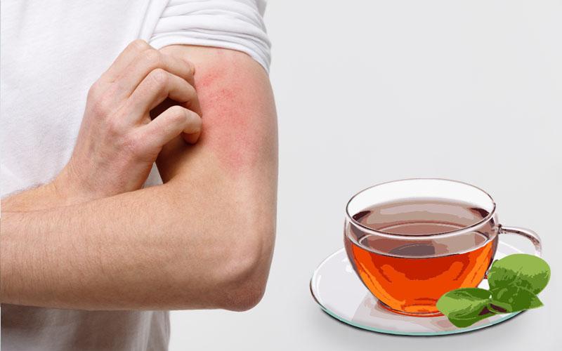 Helps in Skin Allergies
