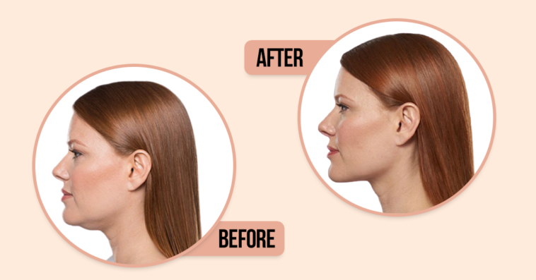 How to get rid of a double chin without treatments
