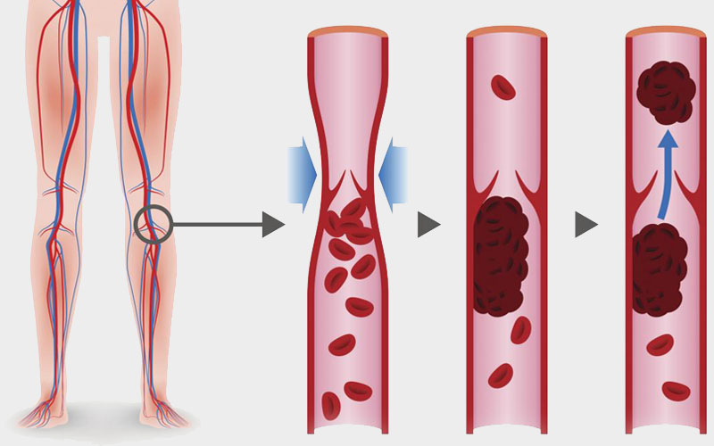 Blood clot giving rise to the back of knee pain