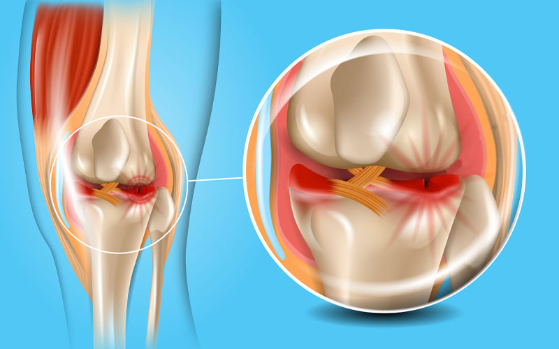 Pain Behind The Knee Due to Meniscus Tear