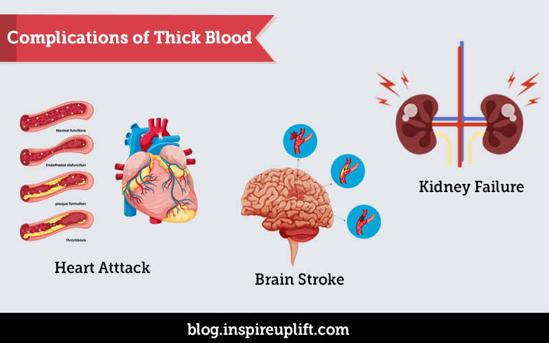 Complications of Thick Blood