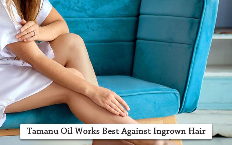 tamanu oil for ingrown hair