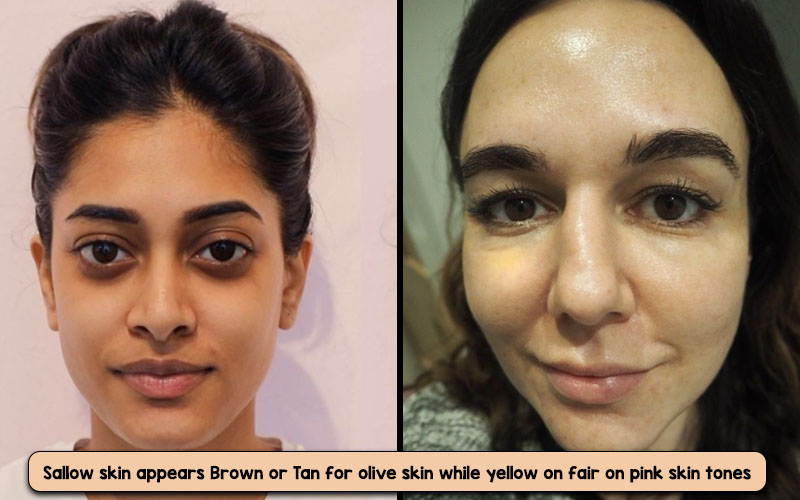 Sallow Skin Tone pictures