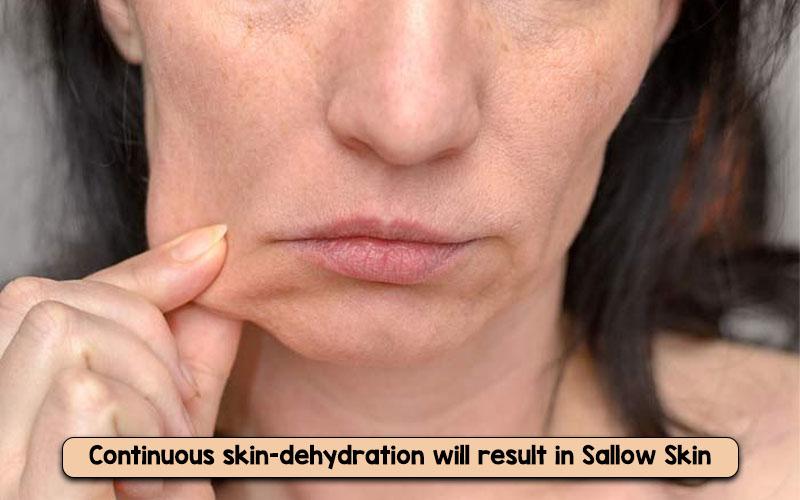 Sallow skin examples
