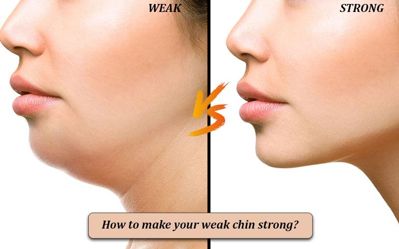 Weak chin shapes