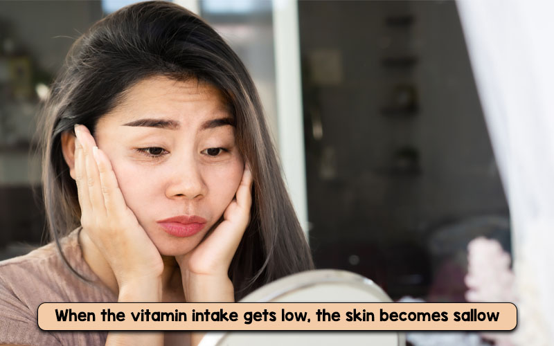 What causes sallow skin