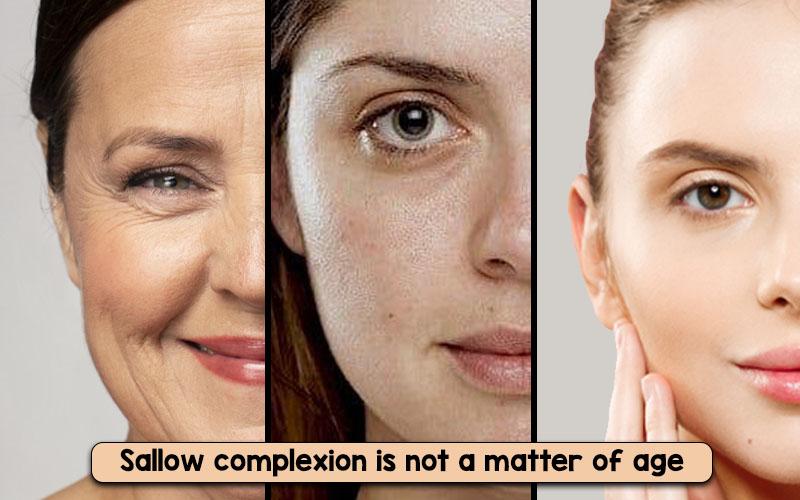 sallow skin condition