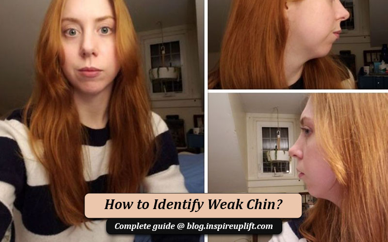 weak chin pictures